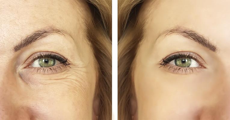 rid of wrinkles