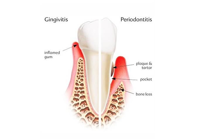 gum disease Alzheimer's