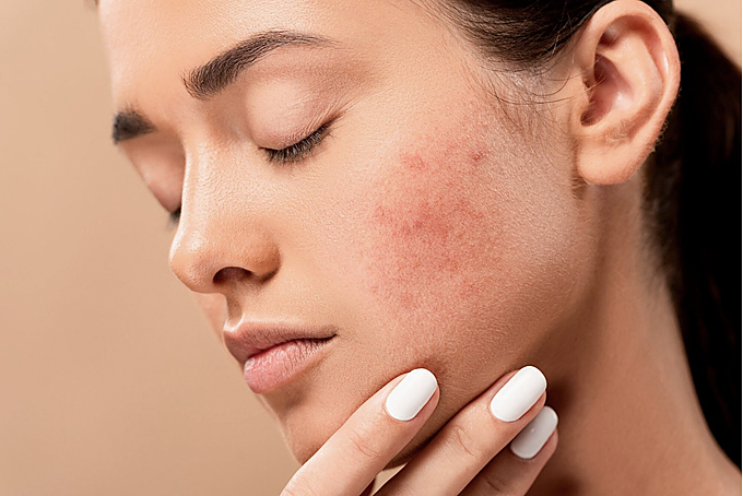 acne affect