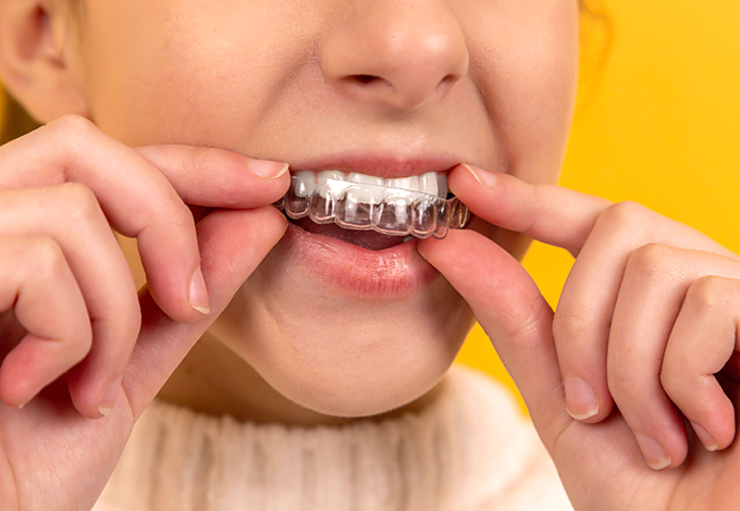 braces tips